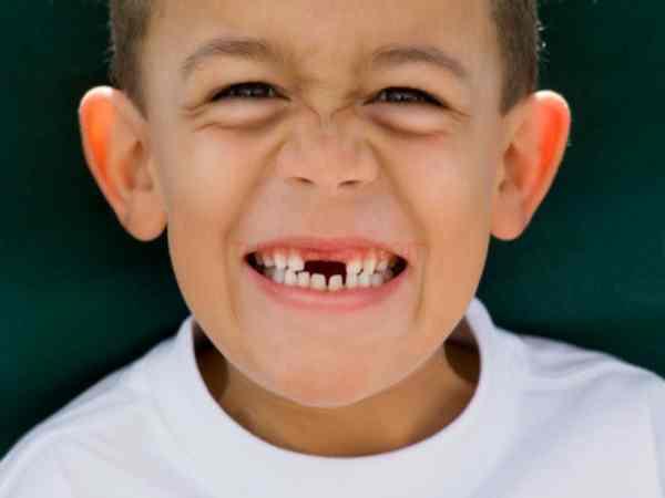 Mơ thấy gãy răng